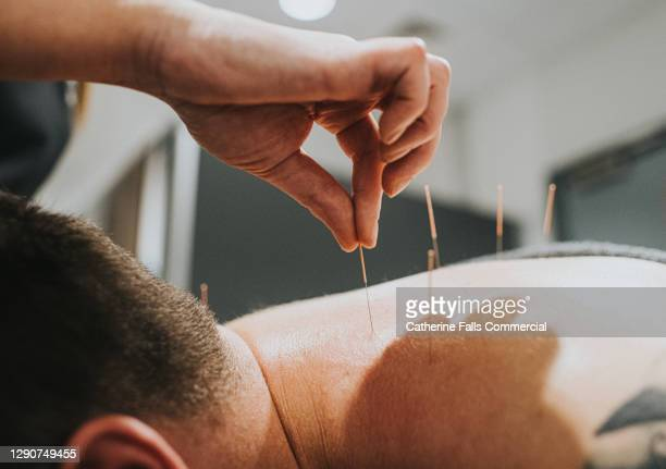 acupuncturist places needles in patients back - human back stock pictures, royalty-free photos & images