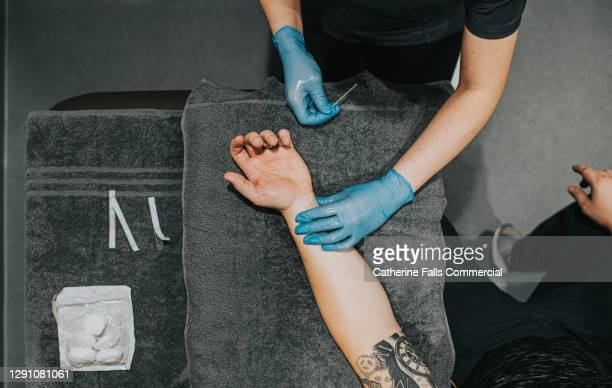 acupuncturist placing acupuncture needles in patients wrist - piercing stock pictures, royalty-free photos & images