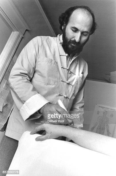 """Acupuncturist Ron Rosen applies a heated herb known as """"moxa"""" to the needles in a patient's hand. The herb is used to warm and stimulate the body's..."""