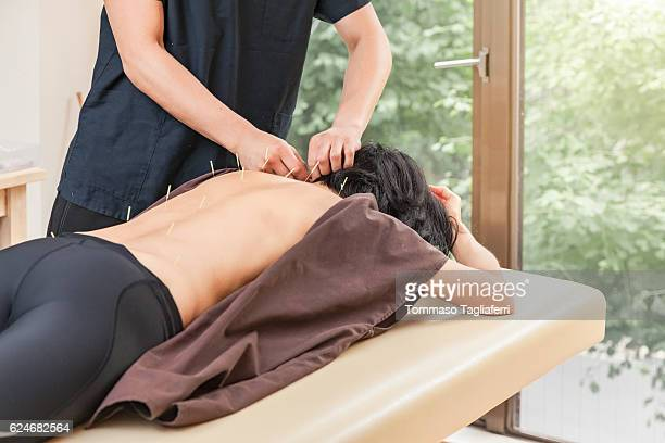 acupuncturist sticking acupuncture needles - acupuncture stock pictures, royalty-free photos & images