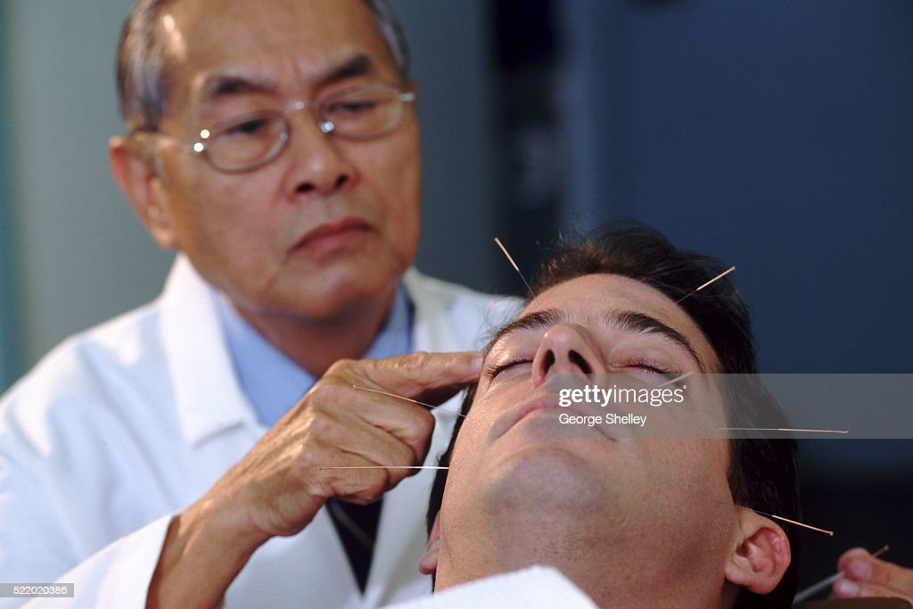 Acupuncturist with a patient : Stock Photo