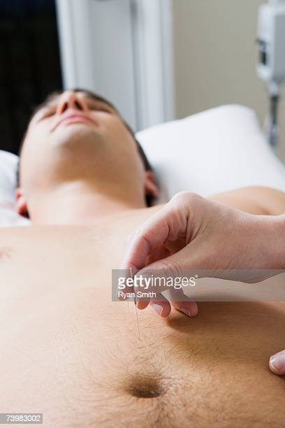 acupuncturist with patient - male belly button stock photos and pictures