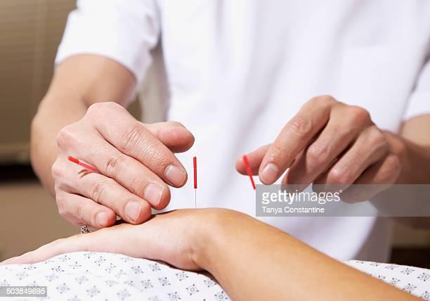 Acupuncturist working on patient