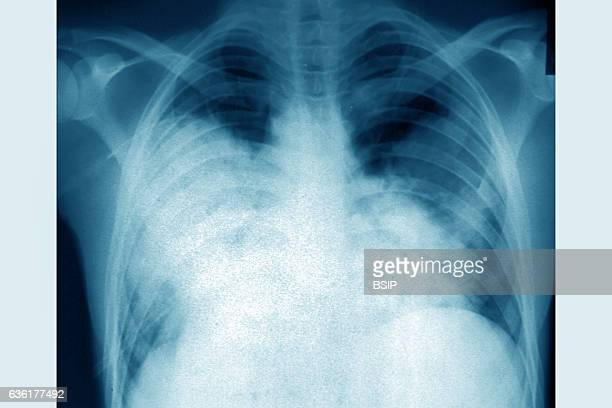 Acute bilateral pneumonia seen on a frontal chest xray