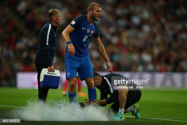 Adam Nemec of Slovakia has his leg sprayed during the FIFA 2018 World Cup Qualifier between England and Slovakia at Wembley Stadium on September 4...