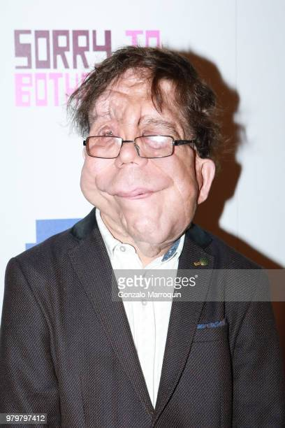 Adam Pearson during the 10th Annual BAMcinemaFest Opening Night Premiere Of 'Sorry To Bother You' at BAM Harvey Theater on June 20 2018 in New York...