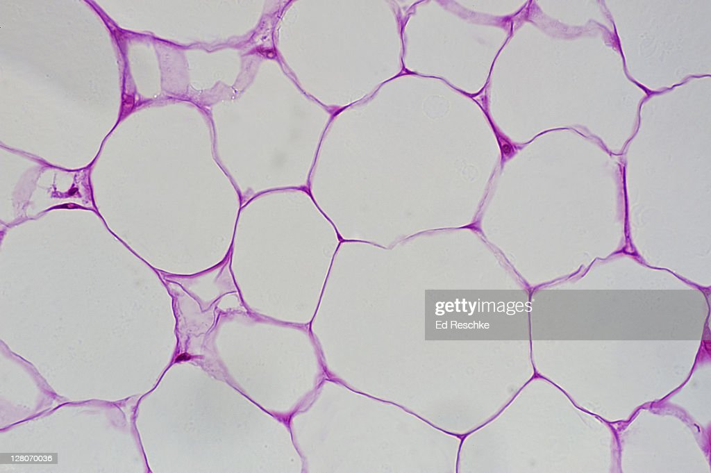 Adipose Tissue Cytoplasm And Large Clear Spaces Where Fat ...