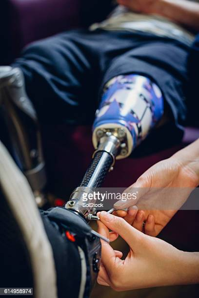 Adjusting Prosthetic Leg