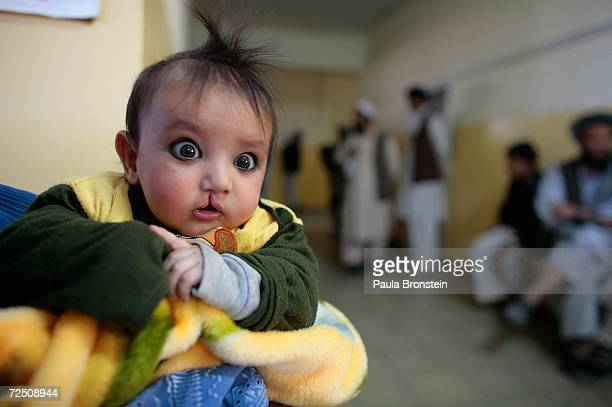 Adrees 4 months waits with his mother to be seen at special clinic to help cleft lip and palate patients at a special clinic to help cleft lip and...