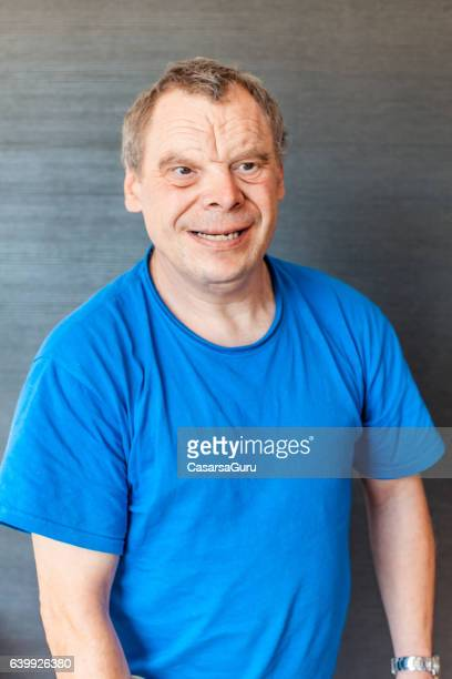 Adult Man Portrait with a Down Syndrome