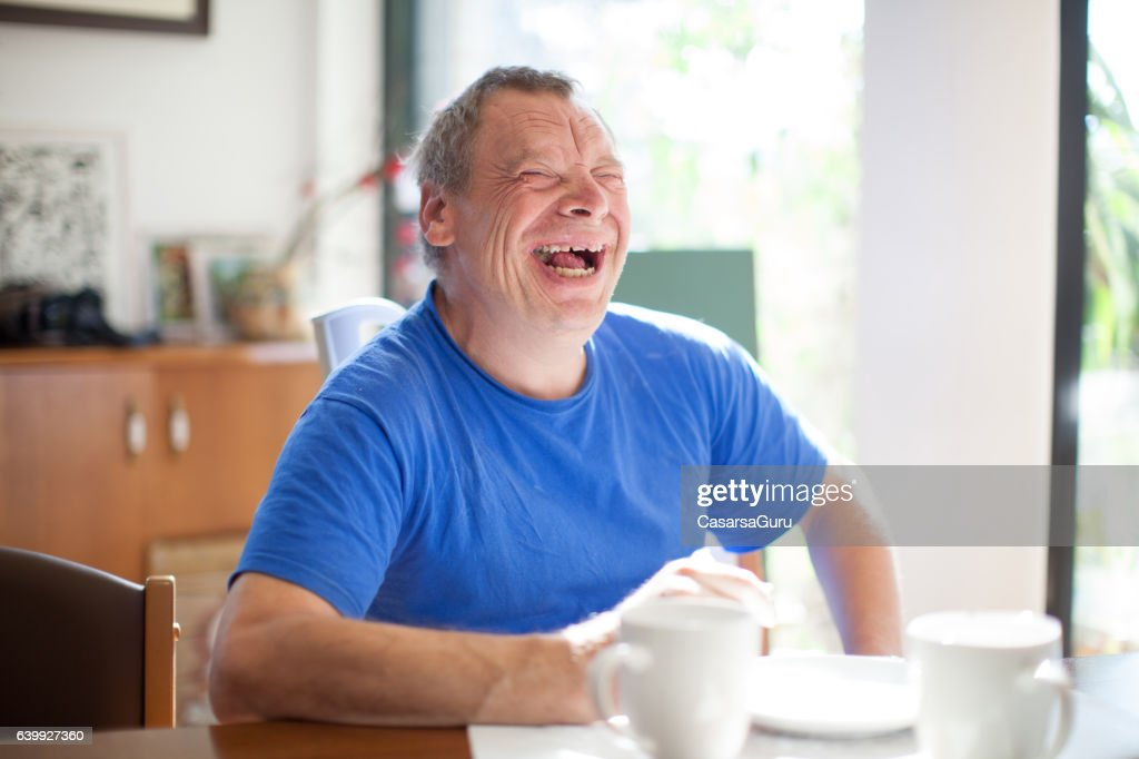 Adult Man Portrait with a Down Syndrome : Stock Photo