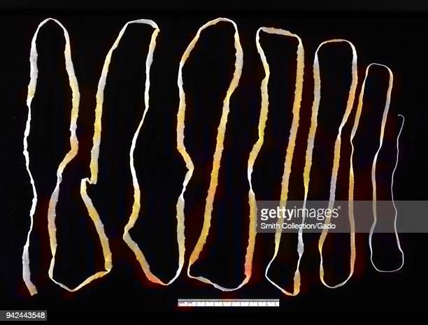 Adult tapeworm in the human intestine 1986 Image courtesy Centers for Disease Control Note Image has been digitally colorized using a modern process...