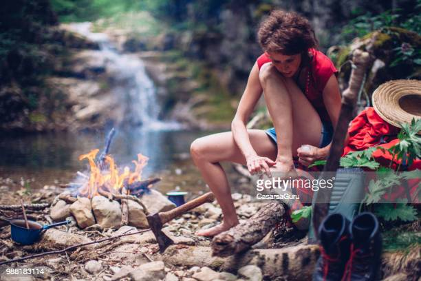 adult woman applying lotion for physical injury - blister stock photos and pictures