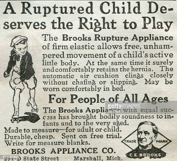 Advertisement for Brooks Rupture Appliance for hernia treatment by the Brooks Appliance Company , 1918.