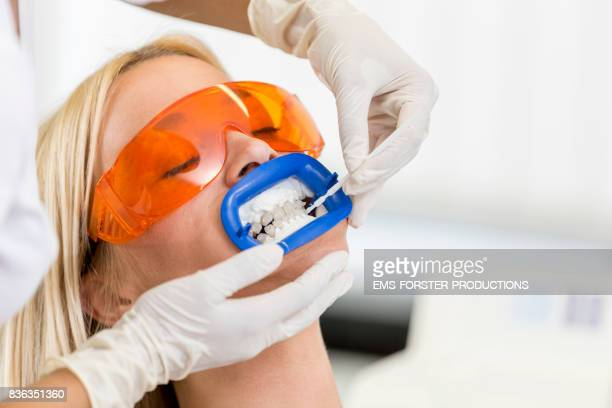 aesthetic cosmetic dentistry dental care - women with long blonde hair lying on chair with mouth open for tooth whitening bleaching wearing protective glasses and female doctor exam gloves applying gel to teeth while lip retractor mouth opener is inserted