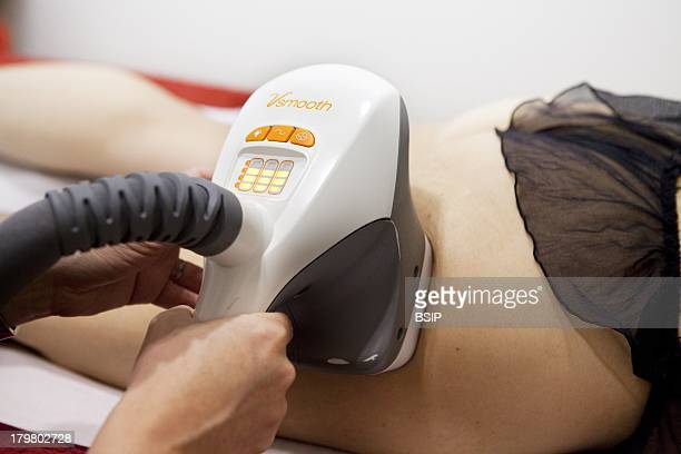 Aesthetic medicine office France Laser for skin tightening far infrared laser and light sources with radiofrequency Syneron Vela smooth Anticellulite...