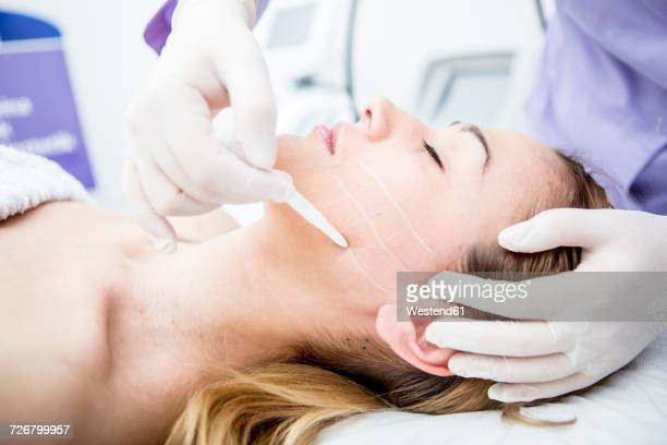 Aesthetic surgery, mesothreads, lifting