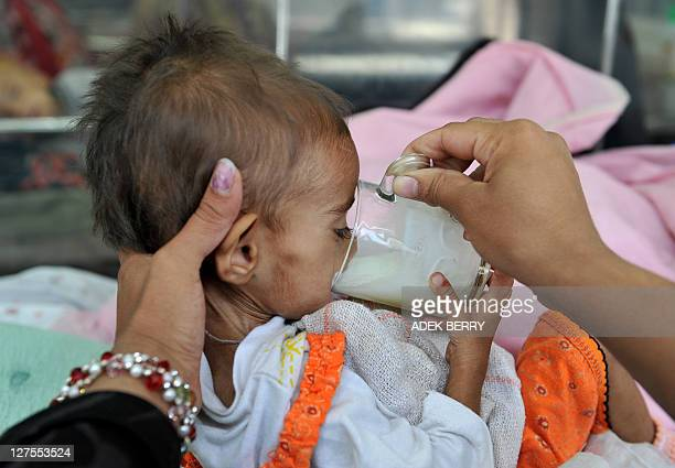 Afghan child Marwah 16monthold suffering from severe malnutrition drinks milk helped by her mother at the Gandhi hospital in Kabul on September 29...