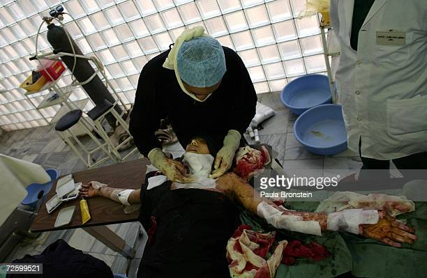 Afghan doctors perform a skin graft operation on Panwasha a self immolation victim at the Herat Regional hospital November 15 2006 in Herat...