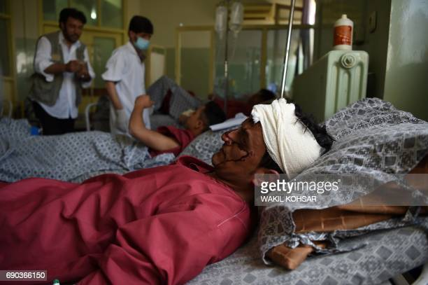 Afghan residents wounded in a car bomb attack receive treatment at a hospital in Kabul on May 31 2017 The death toll in a massive blast which tore...