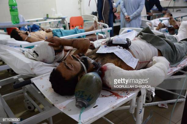 Afghan victims receive treatments at an hospital following a suicide attack in Jalalabad on June 17 2018 A suicide attack in restive eastern...