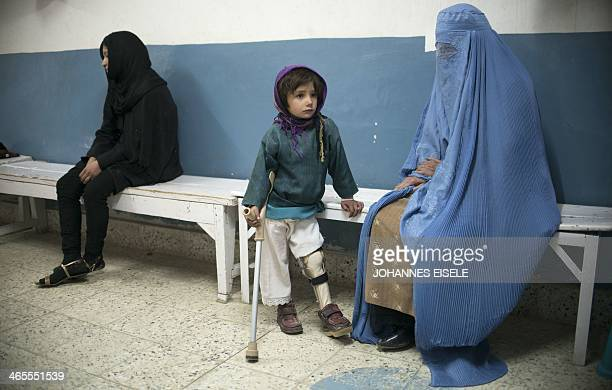 AfghanistanunrestdisabledarmyhealthFEATURE by Ben Sheppard This photograph taken on January 14 2014 shows Halima aged 5 who has a club foot and...