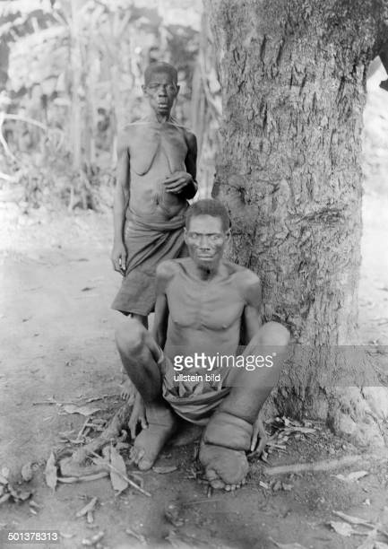 Africa German East Africa man suffers from Elephantiasis undated probably around 1910 Photographer Haeckel
