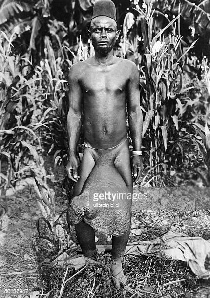 Africa German East Africa man suffers from Elephantiasis undated probably around 1910 Photographer FranzOttoKoch