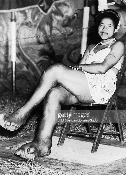 African American sideshow circus entertainer Sylvia Portis, known as Sylvia the Elephant Girl, smiling and displaying her feet, which are deformed...