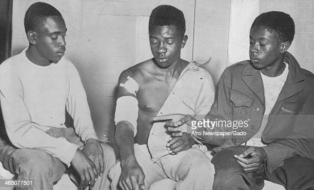 African American youth Ernest Chester and Matthew Brown examine wounds on the arm of their friend who was beaten by five members of the Klu Klux Klan...