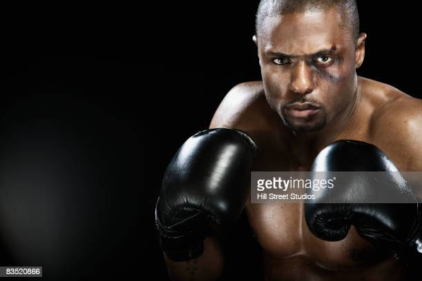 african boxer with bruised face - black eye stock pictures, royalty-free photos & images