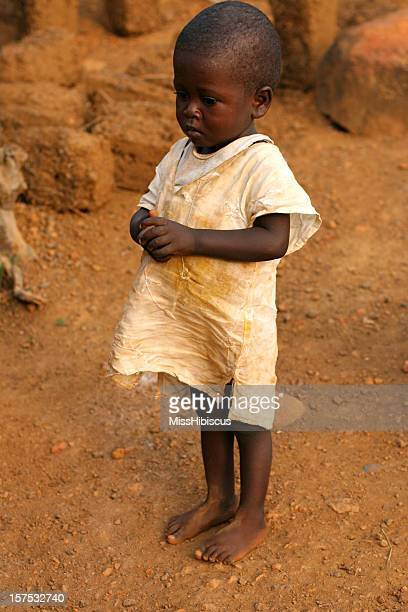 african toddler - underweight stock photos and pictures