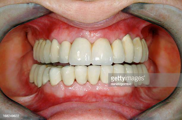 After Full Dental Reconstruction