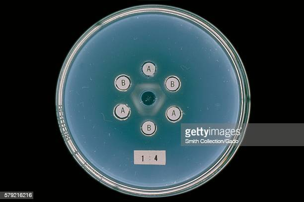 Agar gel reactions of Actinomyces sp strains X407 and X573 with homologous antibodies A and B 1964 Actinomyces sp normally found in the oral cavity...