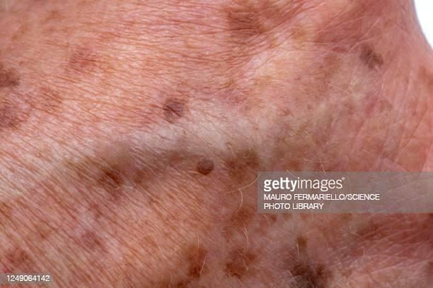 age spots on elderly skin - lentigo fotografías e imágenes de stock