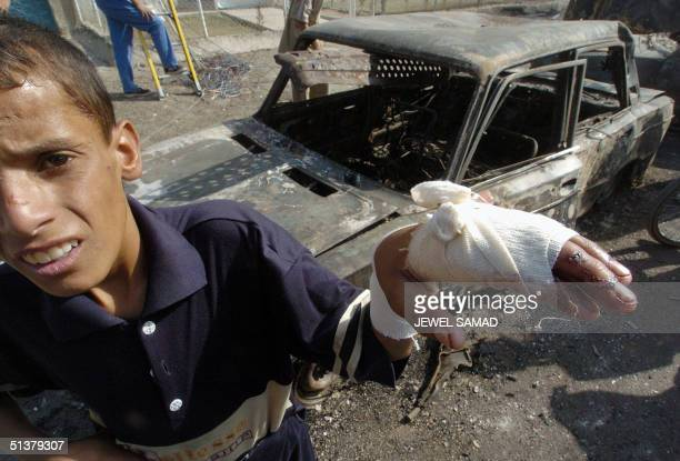 Ahmed Jasim an Iraqi boy who was injured in yesterday's car bomb blasts shows his injured hand as he leans on the wreckage of a destroyed vehicle at...
