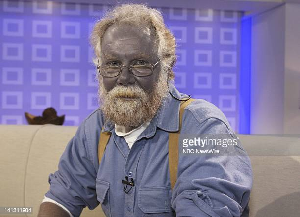 "Air Date 1/7/08 -- Pictured: Paul Karason talks exclusively with NBC News' ""Today"" about turning permanently blue after using colloidal silver on..."