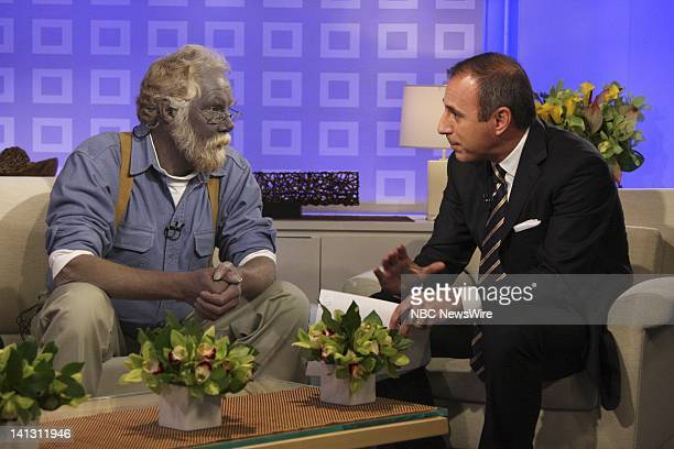 "Air Date 1/7/08 -- Pictured: Paul Karason talks exclusively with NBC News' ""Today"" co-anchor Matt Lauer about turning permanently blue after using..."