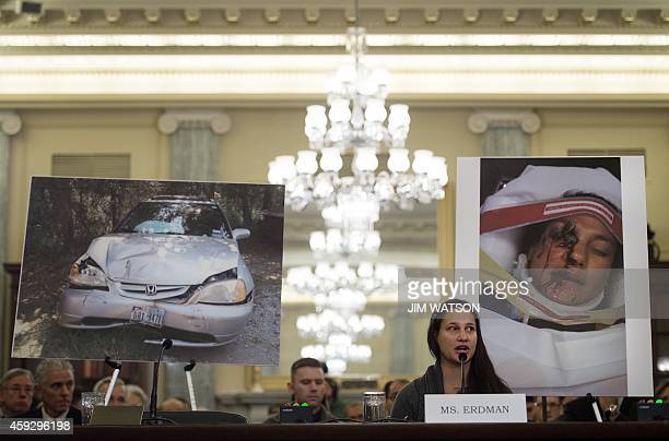 Air Force Lt Stephanie Erdman whose eye was injured by airbag shrapnel from her 2002 Honda Civic is surrounded by pictures showing the accident as...