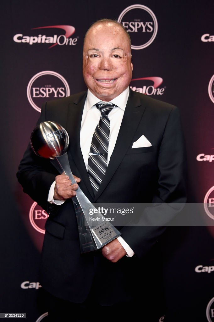 The 2017 ESPYS - Backstage And Audience : News Photo