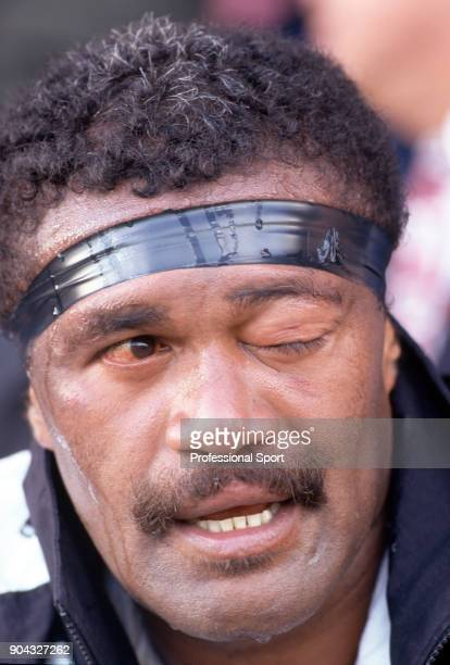 Aisake Nadolo of Fiji sports an eye injury during a rugby union match against Neath at The Gnoll in Neath on 25th October 1995 Neath won 3022