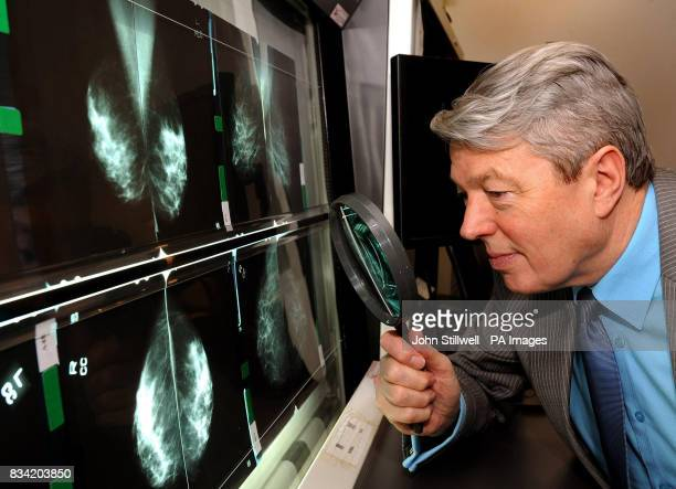 Alan Johnson the Secretary of State for Health studies women's breast xrays during a visit to the breast and cervical screening department of King's...