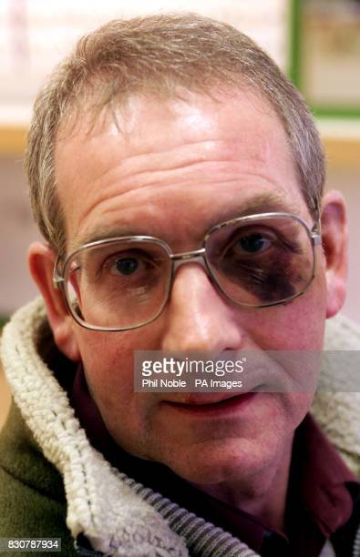 Alan Jones who is waiting for surgery after he was battered senseless by a gang of youths he had asked to stop loitering outside his house in the...