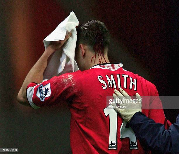 Alan Smith of Manchester United walks off with a head wound to get medical attention after a collission with Brad Friedel of Blackburn Rovers during...