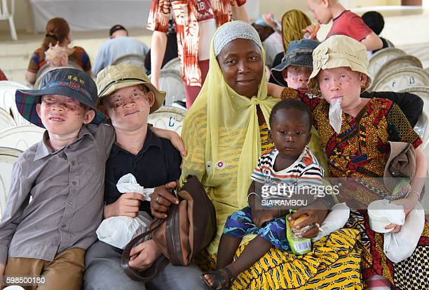 Albino children pose with a woman and a child during a sunglasses and sunblock distribution on August 31 in Abidjan / AFP / Sia KAMBOU