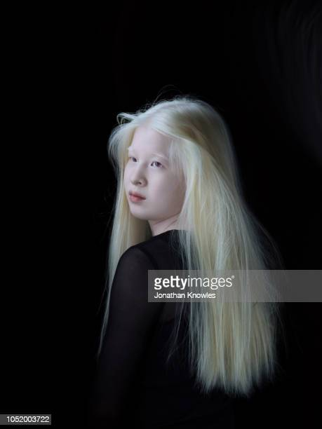 albino chinese teenage girl - albino stock pictures, royalty-free photos & images
