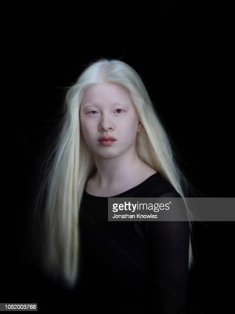 Albino Chinese Teenage Girl