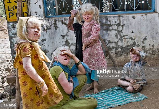 CONTENT] Albino family at Kalyan India @ Haji Malang humans with albinism commonly have vision problems and need sun protection But they also face...