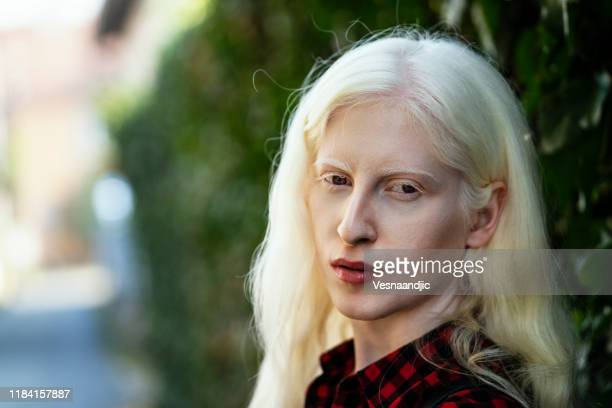 albino girl - albino stock pictures, royalty-free photos & images