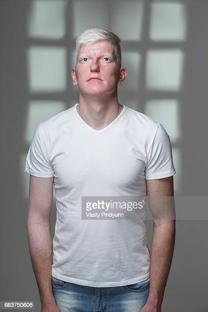 Albino man looking up while standing against gray background
